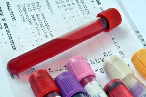 close-up photo of test tubes with fluids