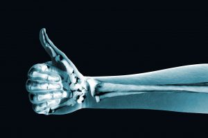 image of an arm and hand x-ray, with the hand giving a thumb's up